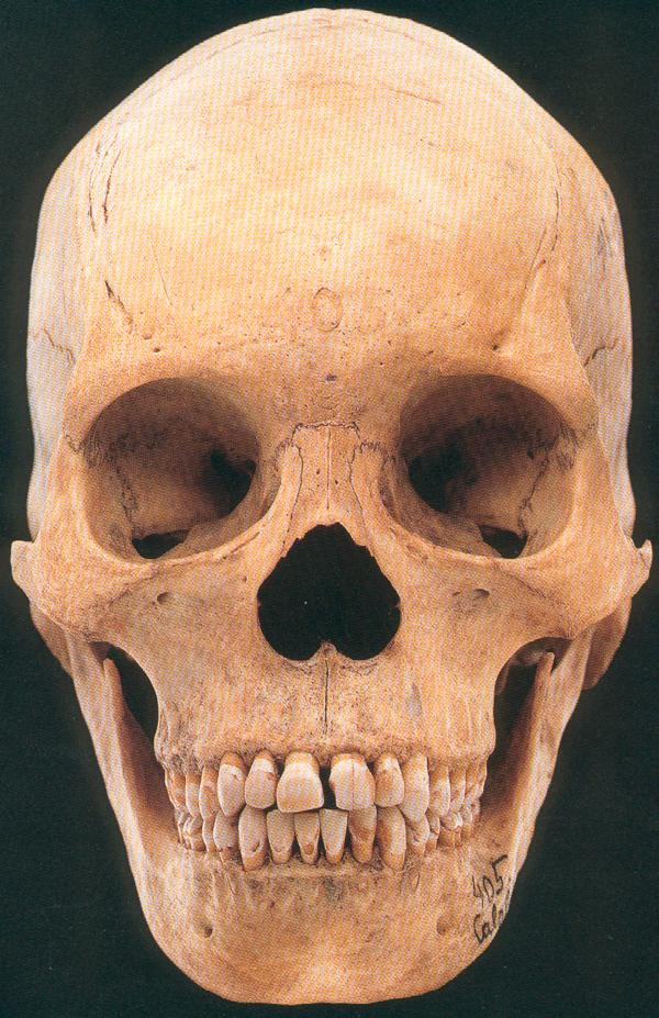 Skulls And Cranial Casts Of The Homininae